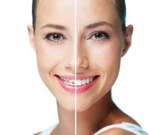 Ortodoncia-invisible-vs-Ortodoncia-tradicional