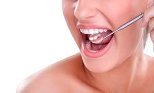 Aclaramiento dental